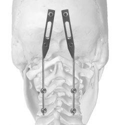 Neuro France Implants Joc 3