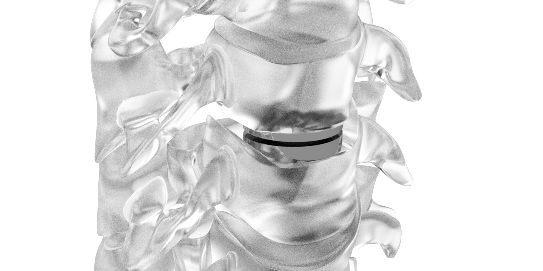 neuro-france-implants-dynalis-1