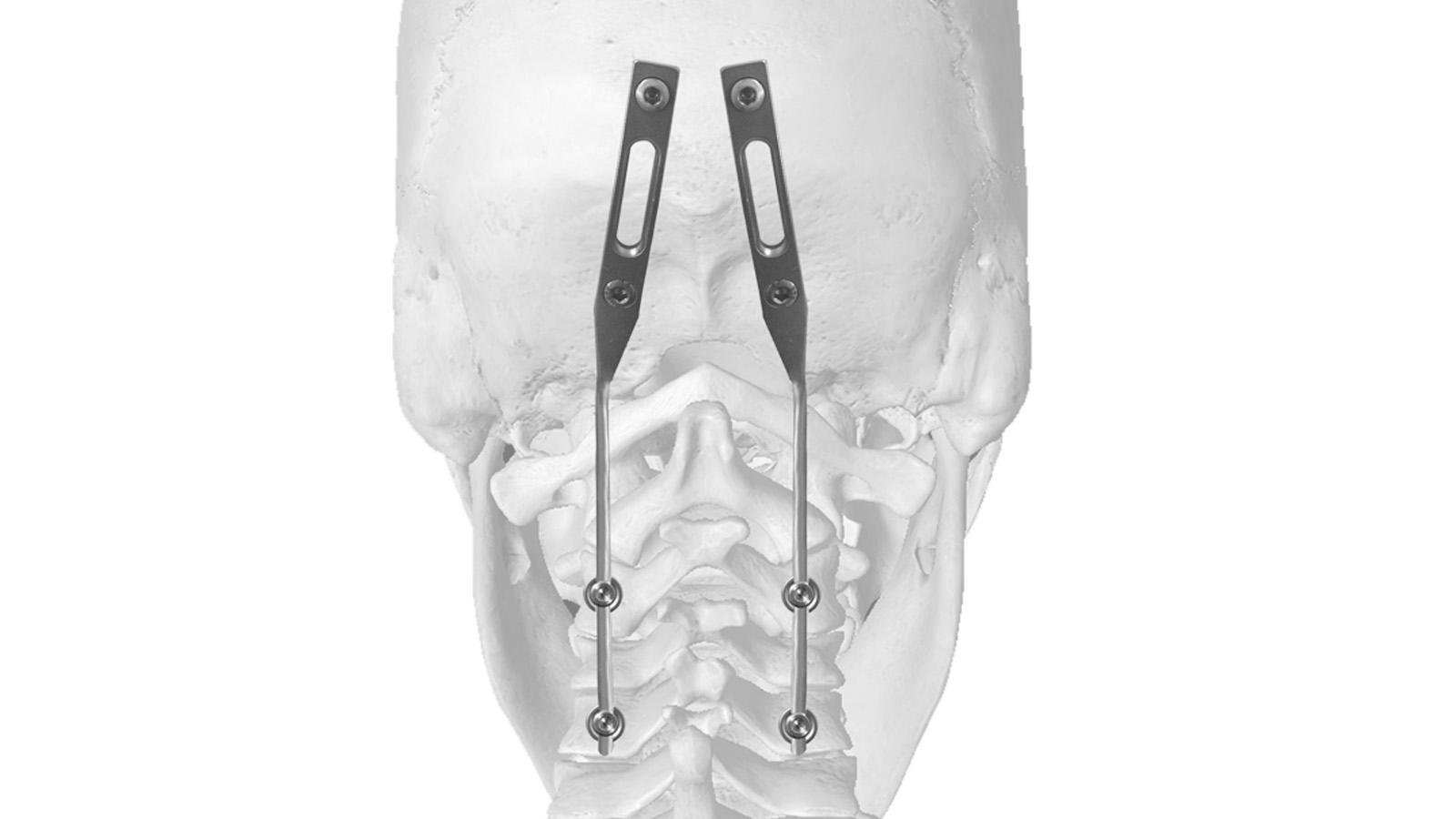 neuro-france-implants-joc-3