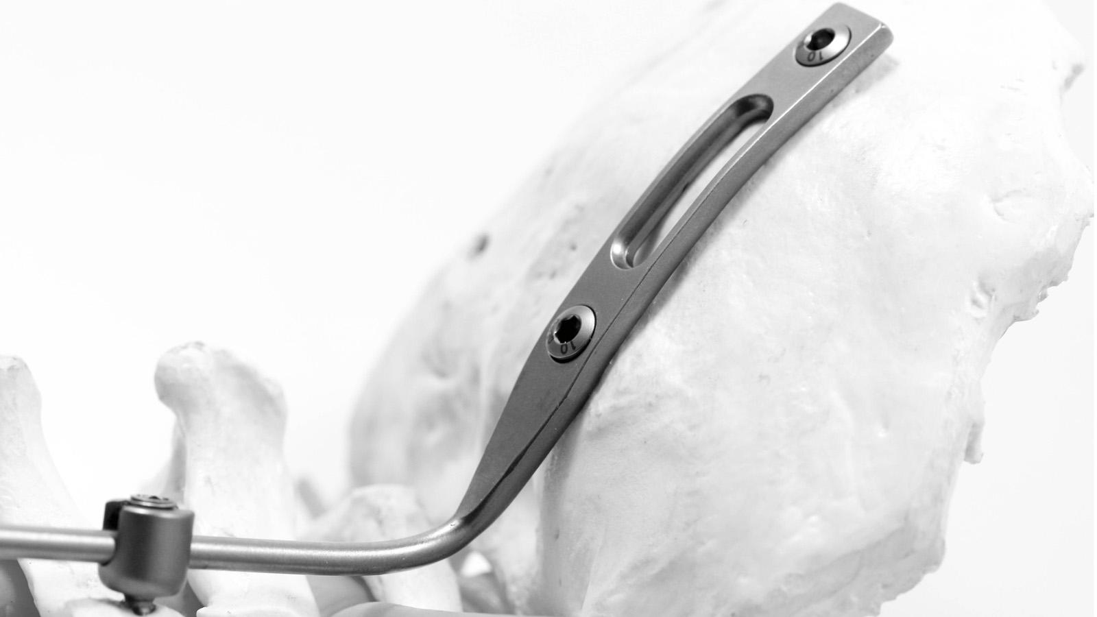 neuro-france-implants-joc