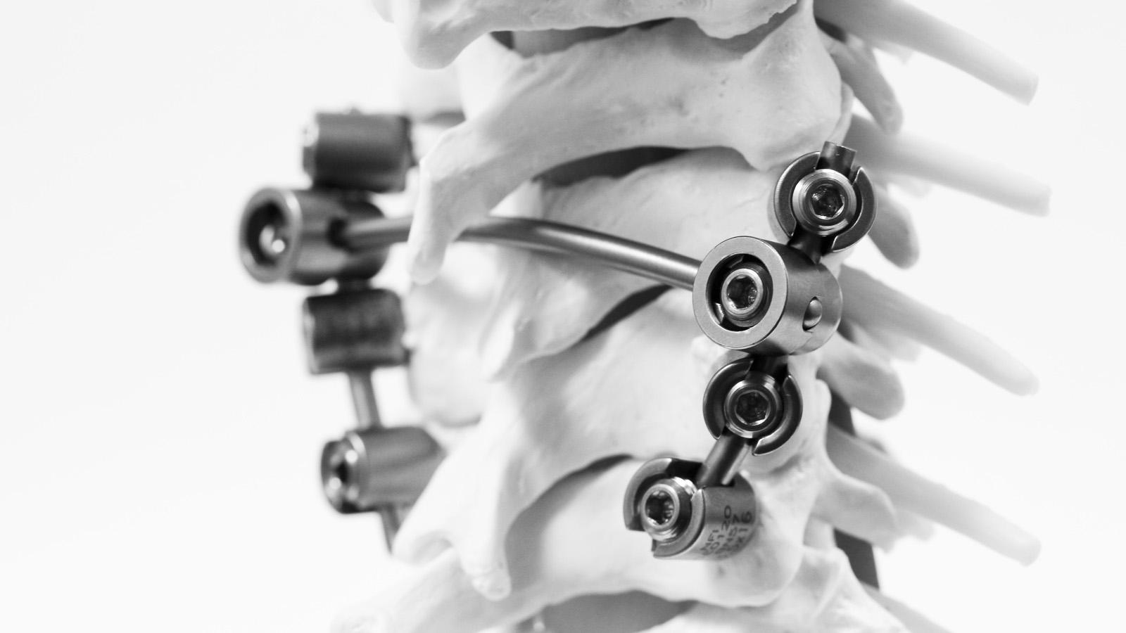 neuro-france-implants-km-bebe-2