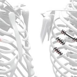 neuro-france-implants-thorib3