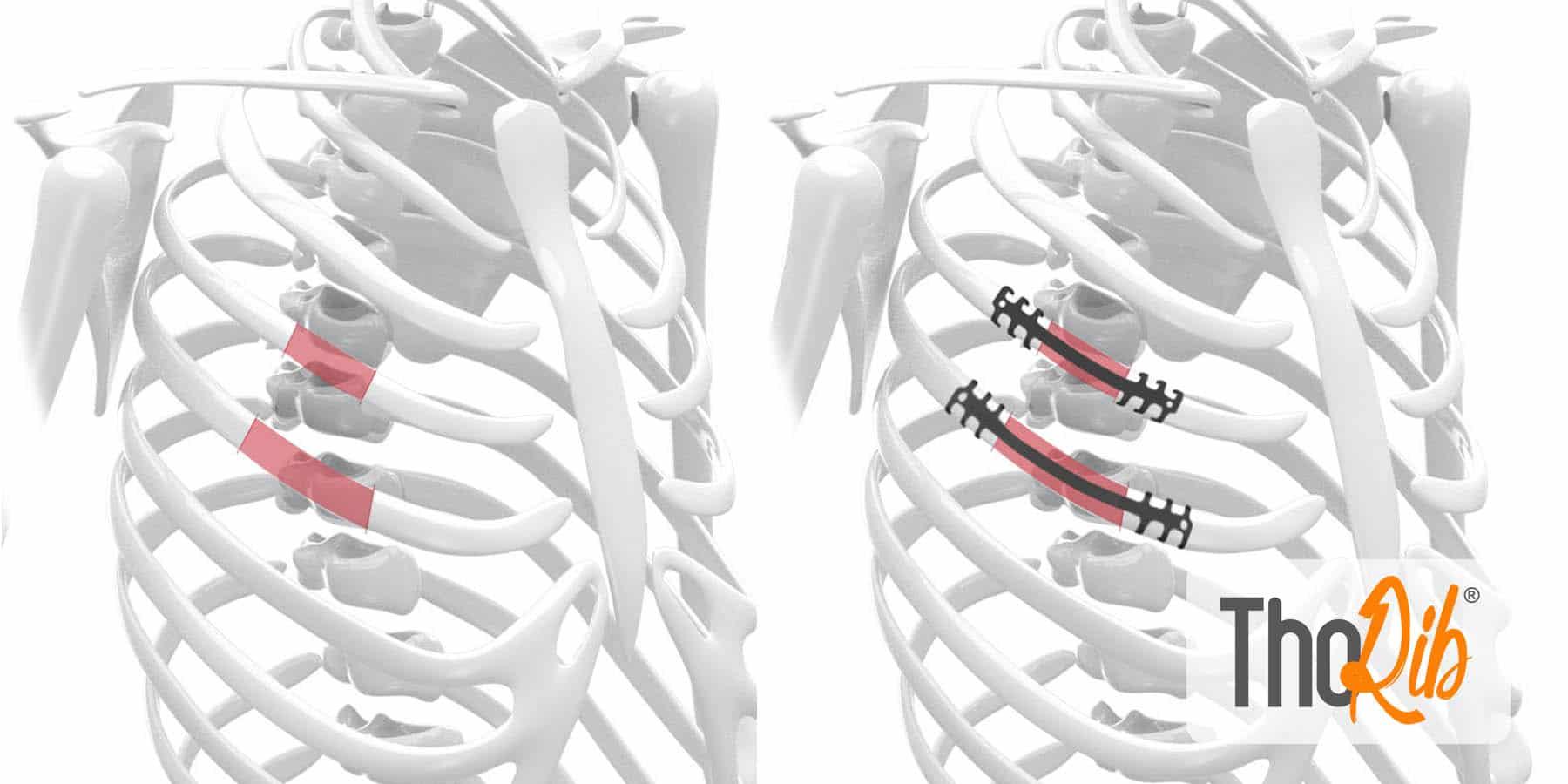 neuro-france-implants-thorib5