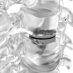 Neuro France Implants Dynalis 1