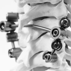 Neuro France Implants Km Bebe 2